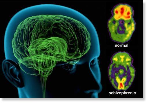 Les rocks et aussi les slows (mode radio radieuse) - Page 6 Schizophrenia